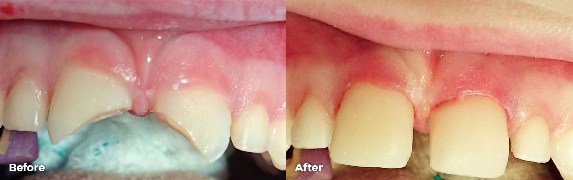 Permanent fracture double crown restoration